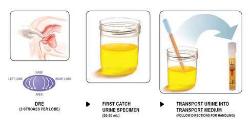 examen sumar urina