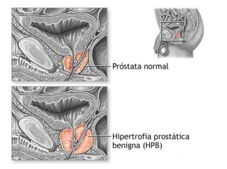 Agrandamiento de Próstata