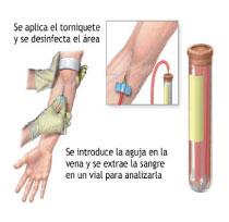 Antígeno prostático específico (APE)