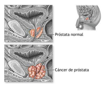 Prostata normal y con cáncer de pro´stata