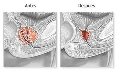 Resección Transuretal (antes y después)